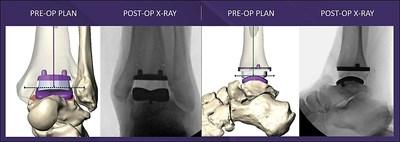 MAVEN™ Patient-Specific Surgical Planning